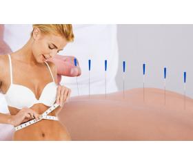 Un método efectivo para adelgazar: La acupuntura